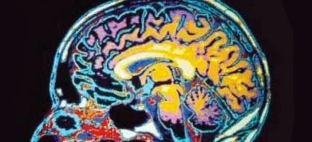 hackear.cerebro